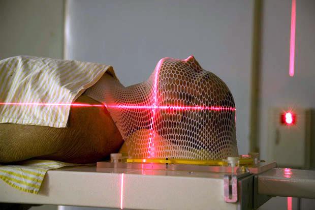 radioterapia-not-4509358
